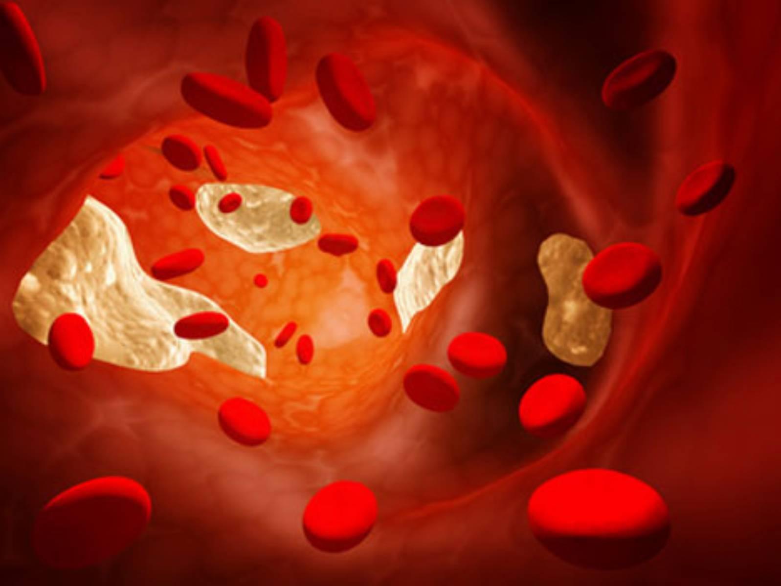 Tajemniczy cholesterol