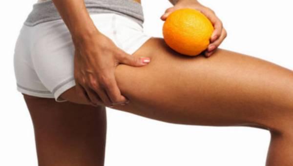 Skąd bierze się cellulit i jak można z nim walczyć?