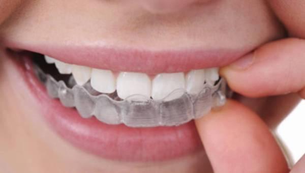 Obalamy mity ortodontyczne