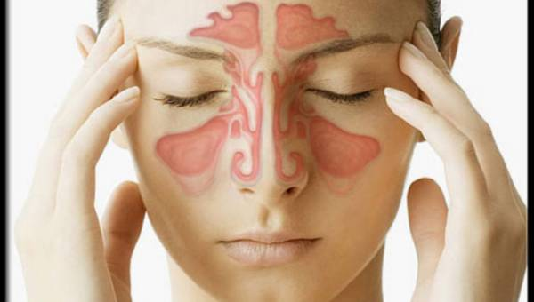 Przewlekła infekcja dróg oddechowych? To może być zapalenie zatok