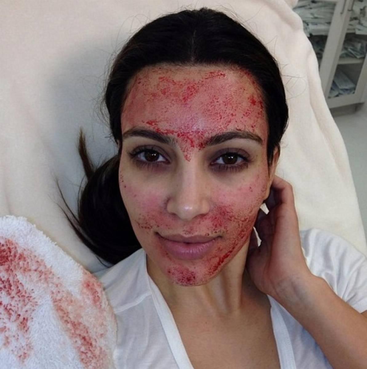 Wampirzy lifting Kim Kardashian