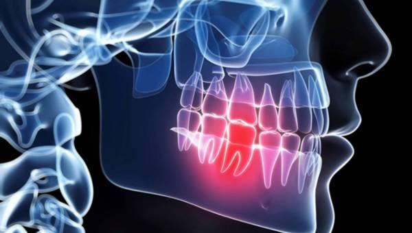Domowe sposoby na ból zęba – porady eksperta