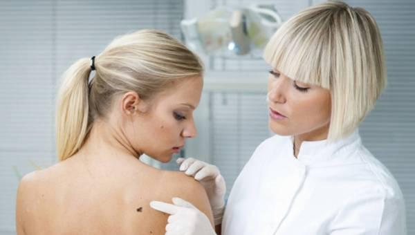 Zmiany skórne – pozbądź się kompleksów u dermatologa!