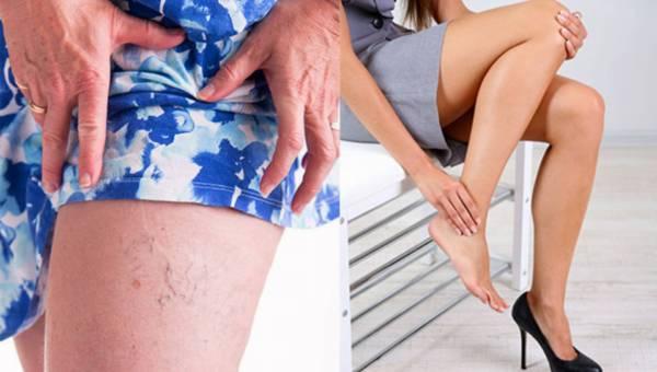 Porady eksperta: jak trwale zlikwidować pajączki na nogach