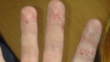 """""""Pękająca skóra na dłoniach to mój problem od kilku lat. Co robić? POMOCY!"""" – zobacz zdjęcia!"""