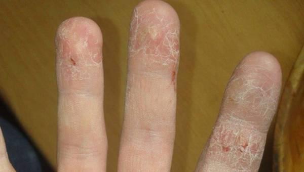 """Moja skóra pęka na dłoniach od kilku lat. Co robić? POMOCY!"""