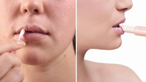 Jeśli suche usta to Twój problem – to wiemy, jak temu zaradzić w 5 krokach