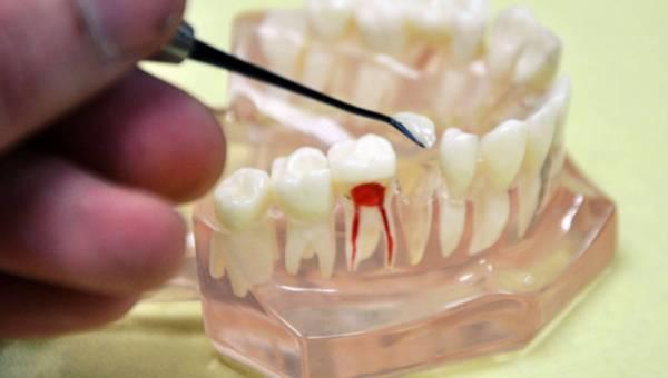 Trucizna w zębie – Uwaga na Bisfenol A, to toksyna, którą możesz mieć w zębie!
