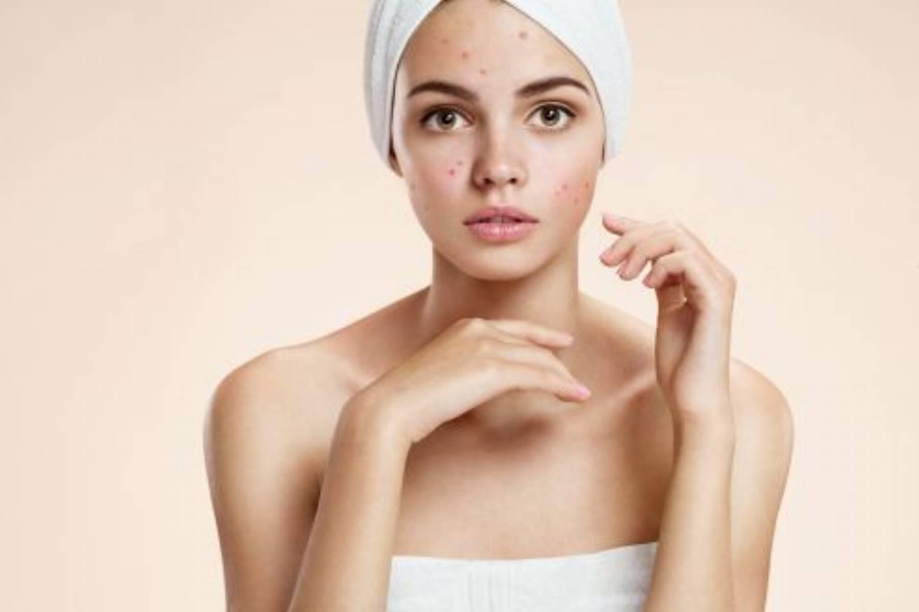 Pielęgnacja skóry trądzikowej – czego nie robić?