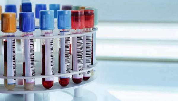 Jak rozpoznać anemię?