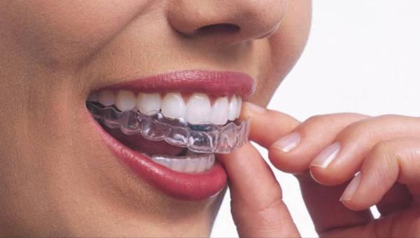 Aparat, licówki, implanty, czyli co zrobić by mieć idealny uśmiech gwiazdy filmowej?
