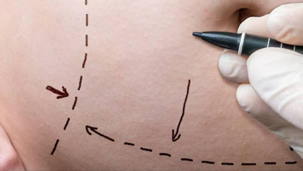 Plastyka brzucha – sposób na obwisłą skórę