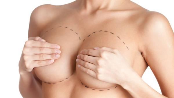Jakich efektów można się spodziewać po zabiegu powiększania piersi Macrolane?