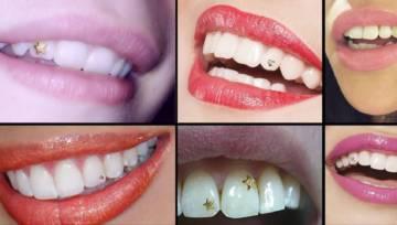 Biżuteria na zęby – wielki powrót trendu z lat 90-tych!