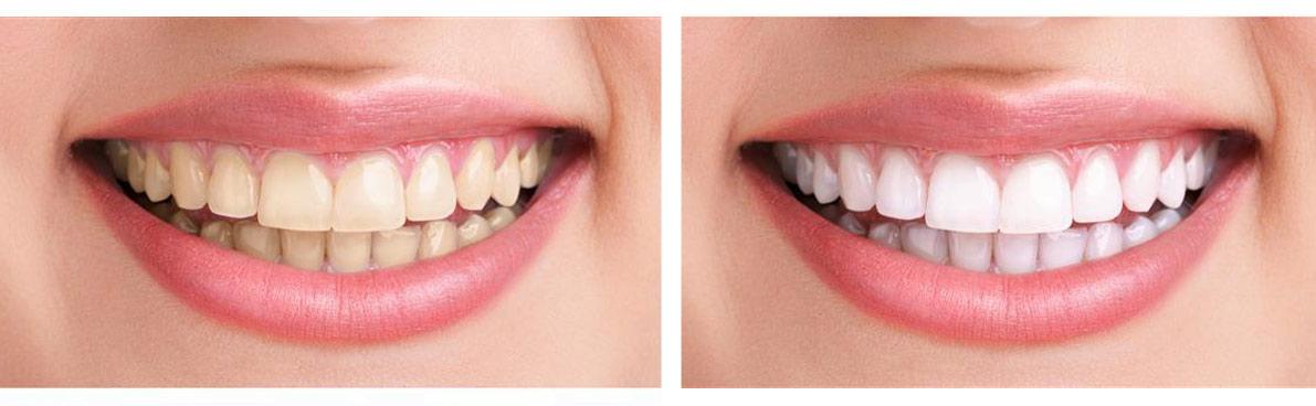 bezpieczne wybielanie zębów