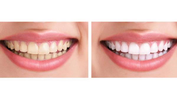 Proste i bezpieczne wybielanie zębów