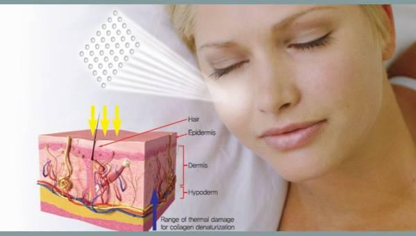 Innowacyjne, skuteczne i bezpieczne zabiegi z wykorzystaniem lasera frakcyjnego PENTAGON GRAND