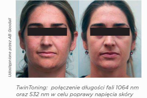 napięcie skóry przed i po zabiegu laserem