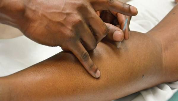 Na co pomaga akupunktura?
