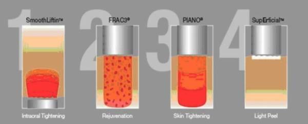 resurfacing peeling laserowy Fotona - jak działa