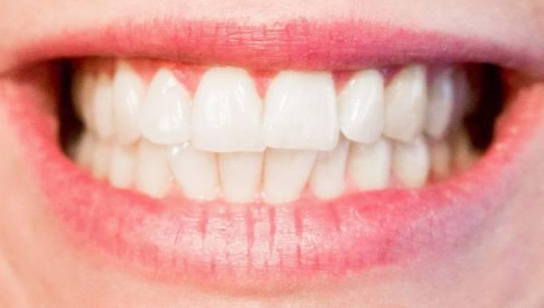 Domowe sposoby na ból zęba – sprawdź, jak go złagodzić!