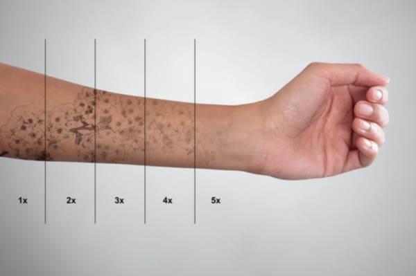 Laserowe Usuwanie Tatuażu Przebieg I Efekty Po Zabiegu