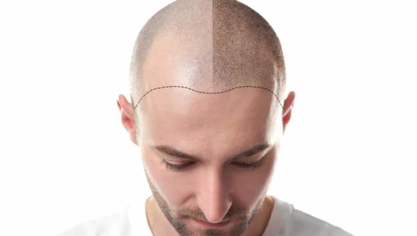 Fakty i mity dotyczące przeszczepu włosów — poznaj najnowsze i najskuteczniejsze metody w walce z łysieniem