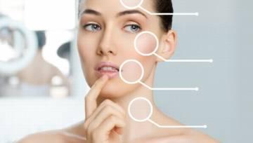 Trądzik u dorosłych – czy odpowiednia dieta i kosmetyki pomogą w wyleczeniu?