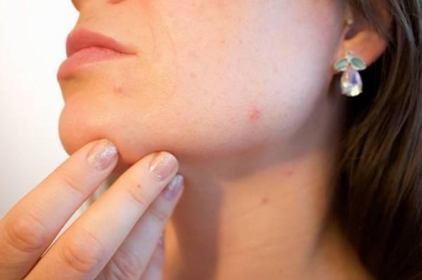 kosmetyki z bakuchiolem