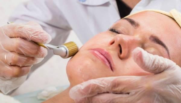 Zabiegi na twarz dla kobiet po 40 – jakie wybrać?