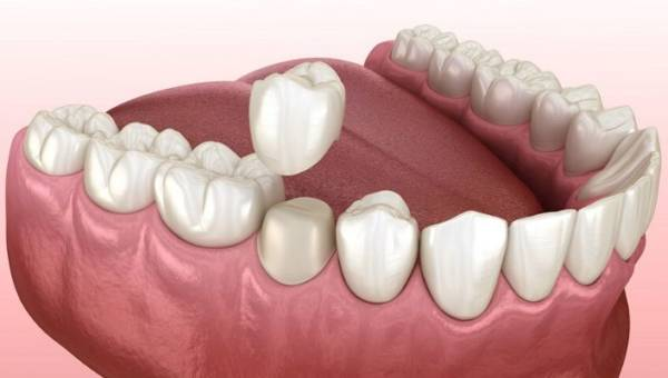 5 rzeczy, których nie wiesz o pełnoceramicznych koronach zębowych
