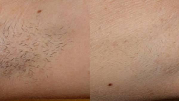 Co wpływa na skuteczność depilacji laserowej?