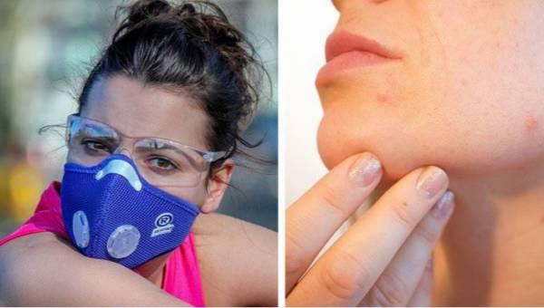 Maskne to nowy rodzaj trądziku spowodowany noszeniem maseczki. Jak się przed nim uchronić?